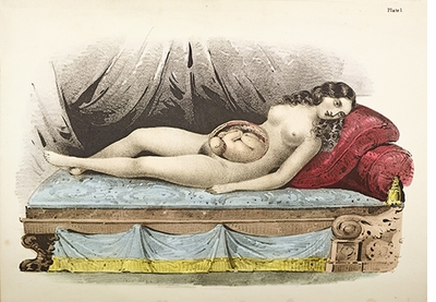 The Anatomical Venus: Wax, God, Death & the Ecstatic, Beach's illustration