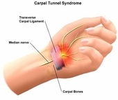 Solving Carpal Tunnel Syndrome with Massage Techniques