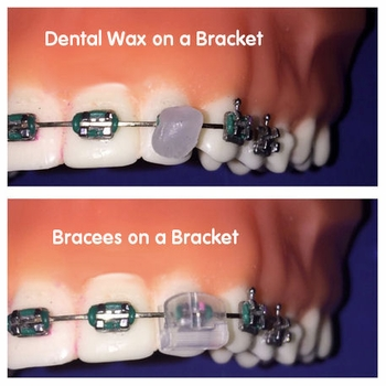 Bracees Orthodontic Bracket Covers for Kids & Adults