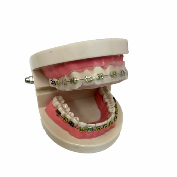 Bracket Jacket Custom-Formed Cover for Dental Braces