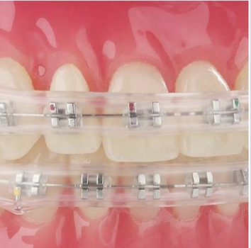 Comfort Cover Lip Bumper For Dental Braces