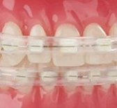 Dental Wax Alternatives and Lip Protectors