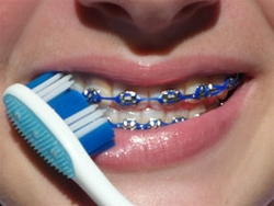 How to Brush and Floss Your Braces