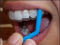 Retainer/Invisalign Removal Tools