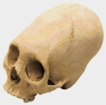 Human Annular Deformation Cranium