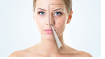 How does hormones effects acne skin?
