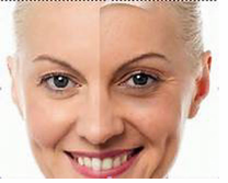 What are the factors causing premature aging?
