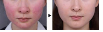 What are the main objectives to reduce couperose skin?