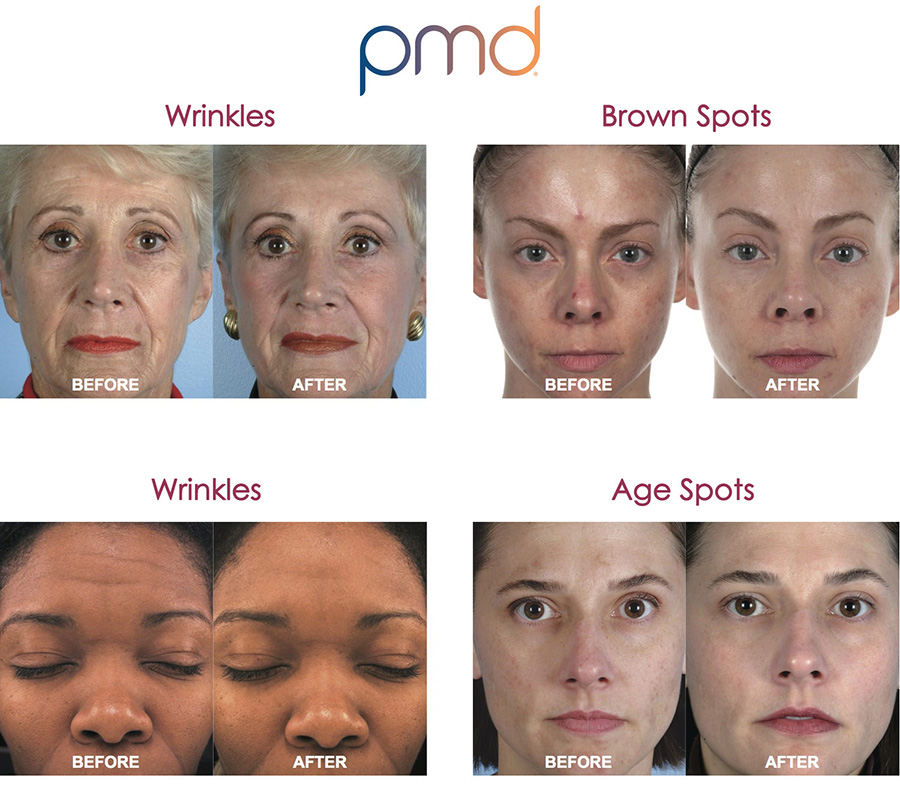Pmd Personal Microderm System Reduces Acne Acne Scars
