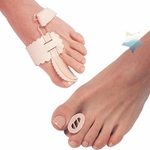 Bunion Relief & Bunion Correction