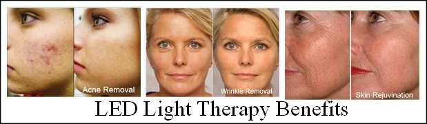 Lgmedsupply Deep Penetrating Light Wrinkles Pain