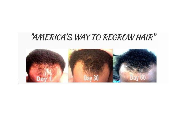 Q HAIR REGROWTH