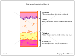 Degrees of severity of burns