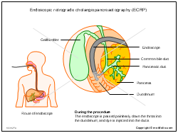 Endoscopic retrograde cholangiopancreaetography ECRP