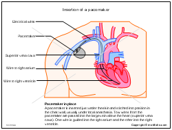Insertion of a pacemaker