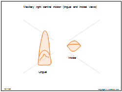Maxillary right central incisor (lingual and incisal views)