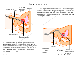 Partial prostatectomy