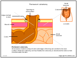 Permanent colostomy