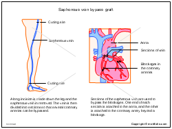 Saphenous vein bypass graft
