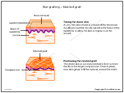 Skin grafting - Meshed graft