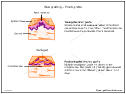 Skin grafting - Pinch grafts