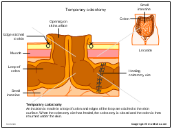 Temporary colostomy