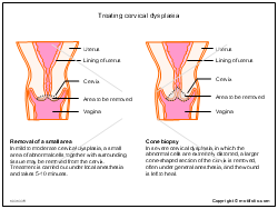 Treating cervical dysplasia