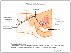 Urethral catheterization