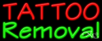 Tattoo Removal Business Neon Sign