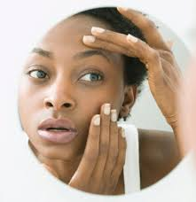 What Causes Dark Circles Under Eyes for African American Women and How Can They Be Treated?