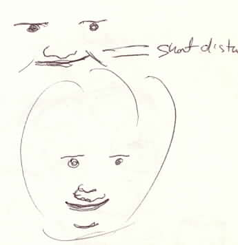 Down's Syndrome Sketch