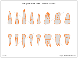 Left permanent teeth � vestibular view