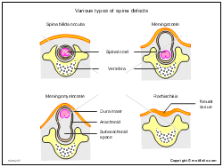 Various types of spina defects