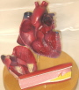 The model of coronary bypass