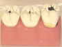 Body of teeth of illness model