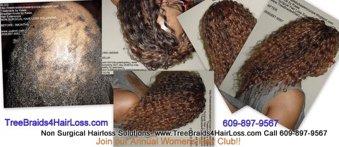 TreeBraids4HairLoss.com- Hair Club For Women.