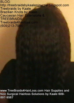 TreeBraids4HairLoss.com- Non-Surgical Hair Loss Solutions at Kaales, Back side.