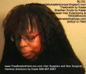 TreeBraids4HairLoss.com- Hair Club For Women at Kaales, Left side.