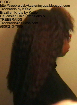 TreeBraids4HairLoss.com- Non-Surgical Hair Loss Solutions at Kaales, Right side.