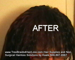 TreeBraids4HairLoss.com- Non-Surgical Hair Loss Solutions at Kaales, Top.
