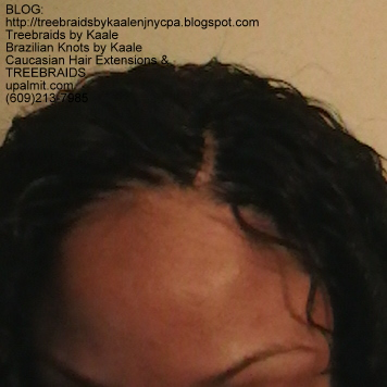Tree Braids with KAALE human hair- Invisible hair line at part.