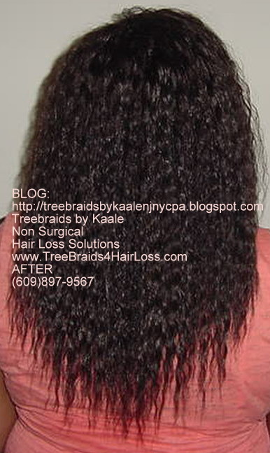 TreeBraids4HairLoss.com- Hair Club For Women at Kaales, Back side.