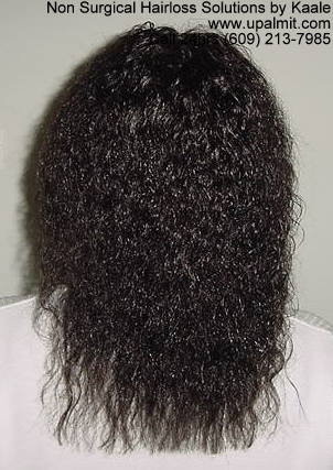 Hair loss back view after treebraids.