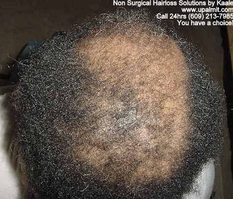 Hair loss before non surgical hair loss solutions.