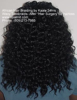 Hair loss back view after treebraids non surgical hair loss solutions by Kaale.