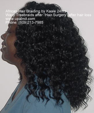 Hairloss side view after treebraids non surgical hair loss solutions by Kaale.