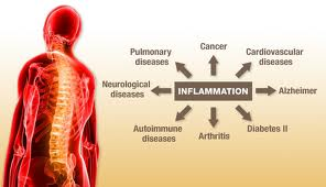 Inflammatory Disease Chart of Information