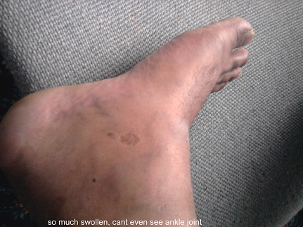 ankle gout