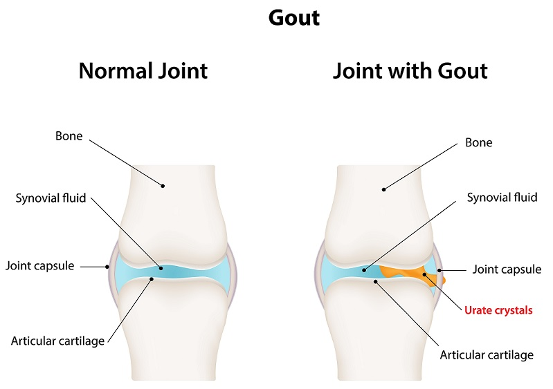 gout in the joints