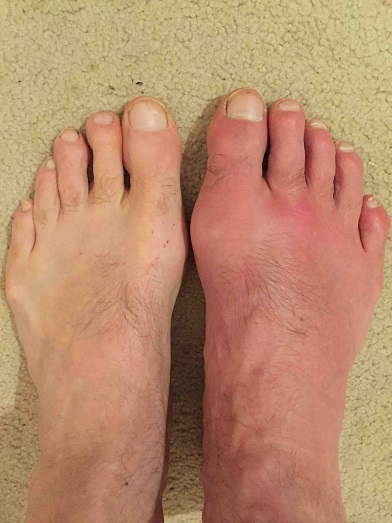 gout in the foot